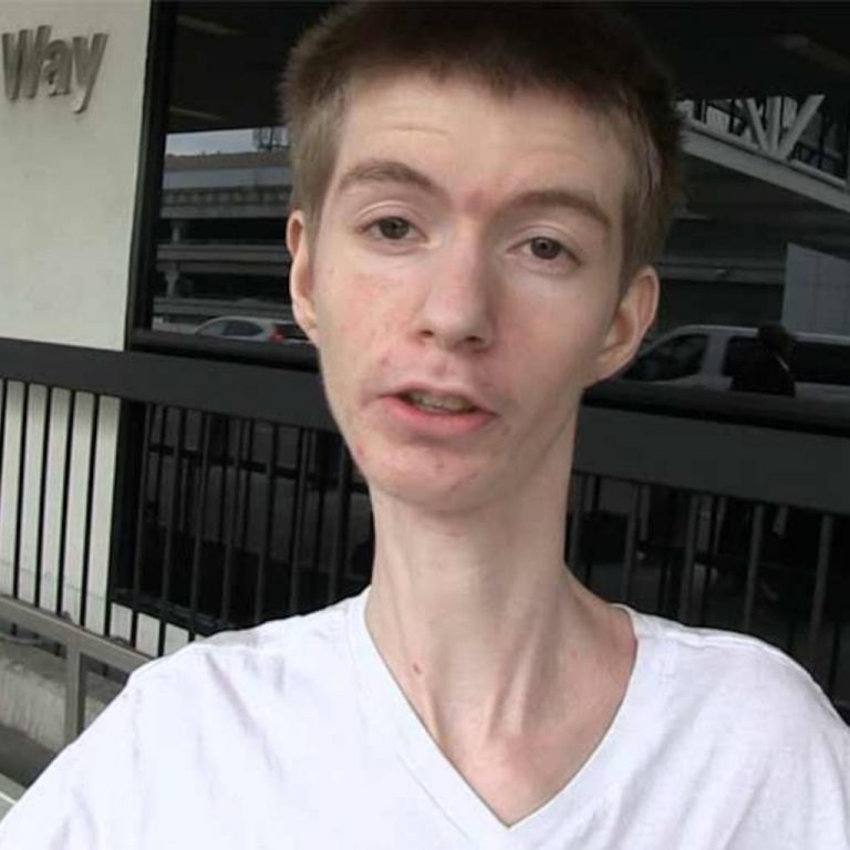 What's wrong with Daddy Long Neck? Wiki, illness, age, net worth
